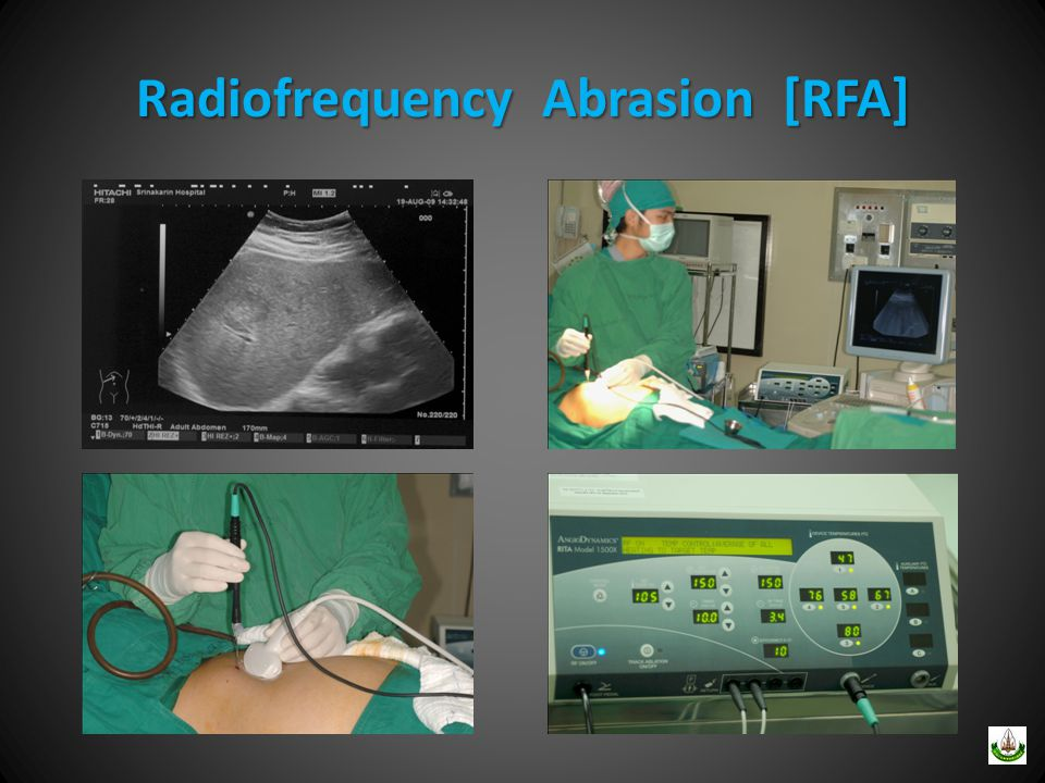 Radiofrequency Abrasion [RFA]